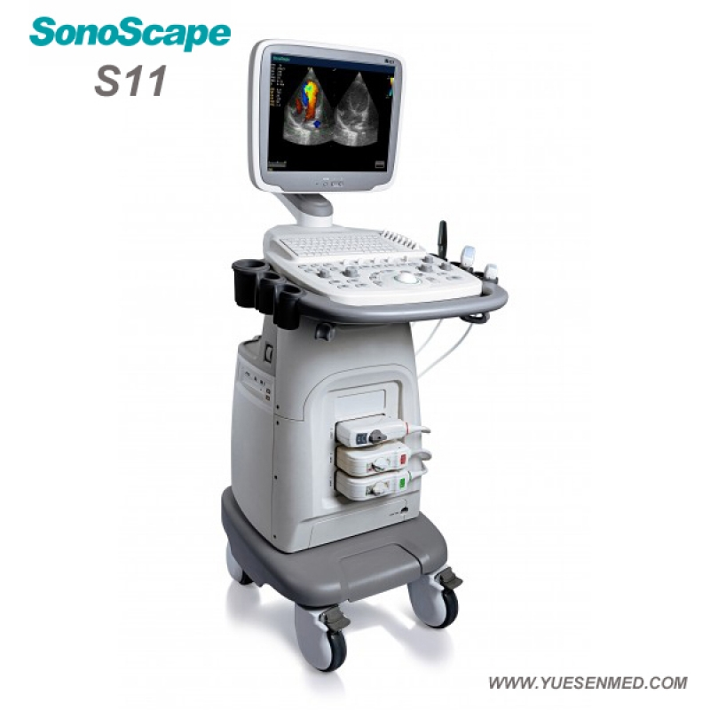 SonoScape S11 Trolley Color Doppler Echographie