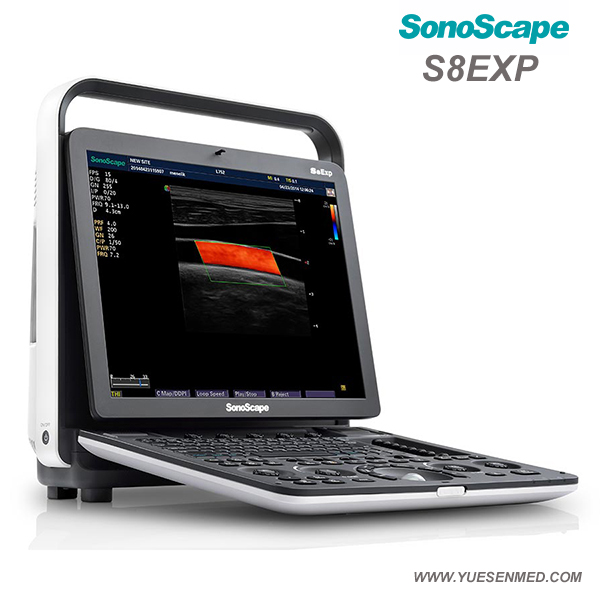 SonoScape S8 EXP Color Ultrasound